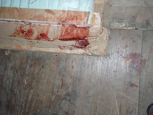 写真: 血です。